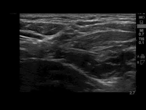 ultrasound guided deep cervical plexus block