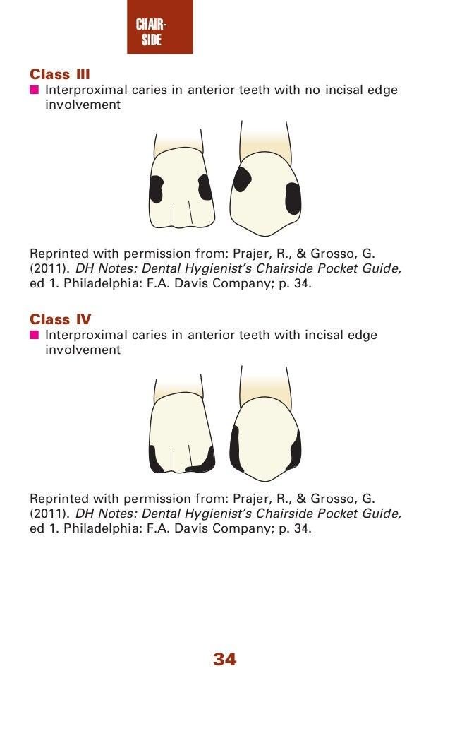 dental assisting notes pocket guide