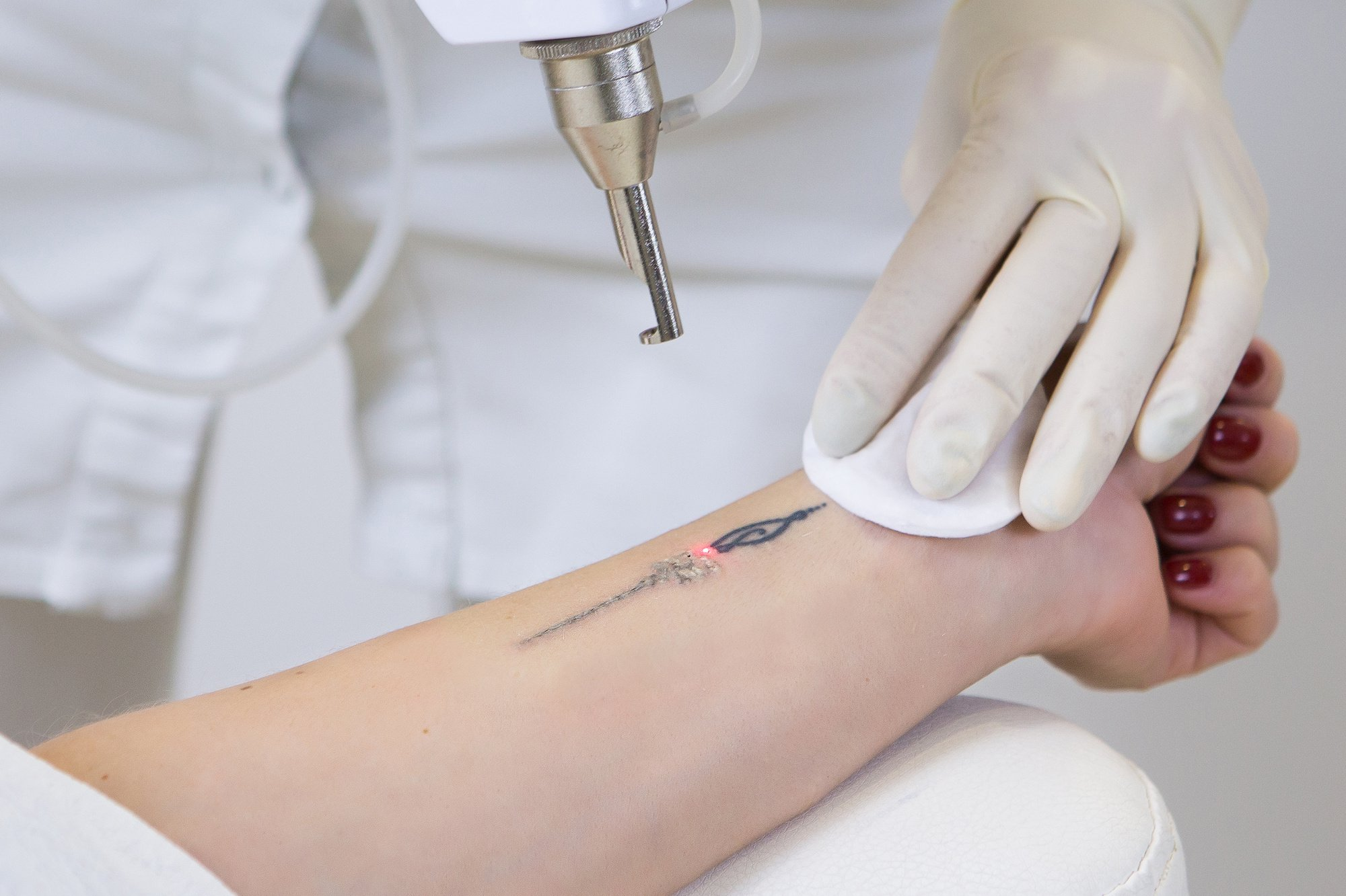 does the laserless tattoo removal guide work